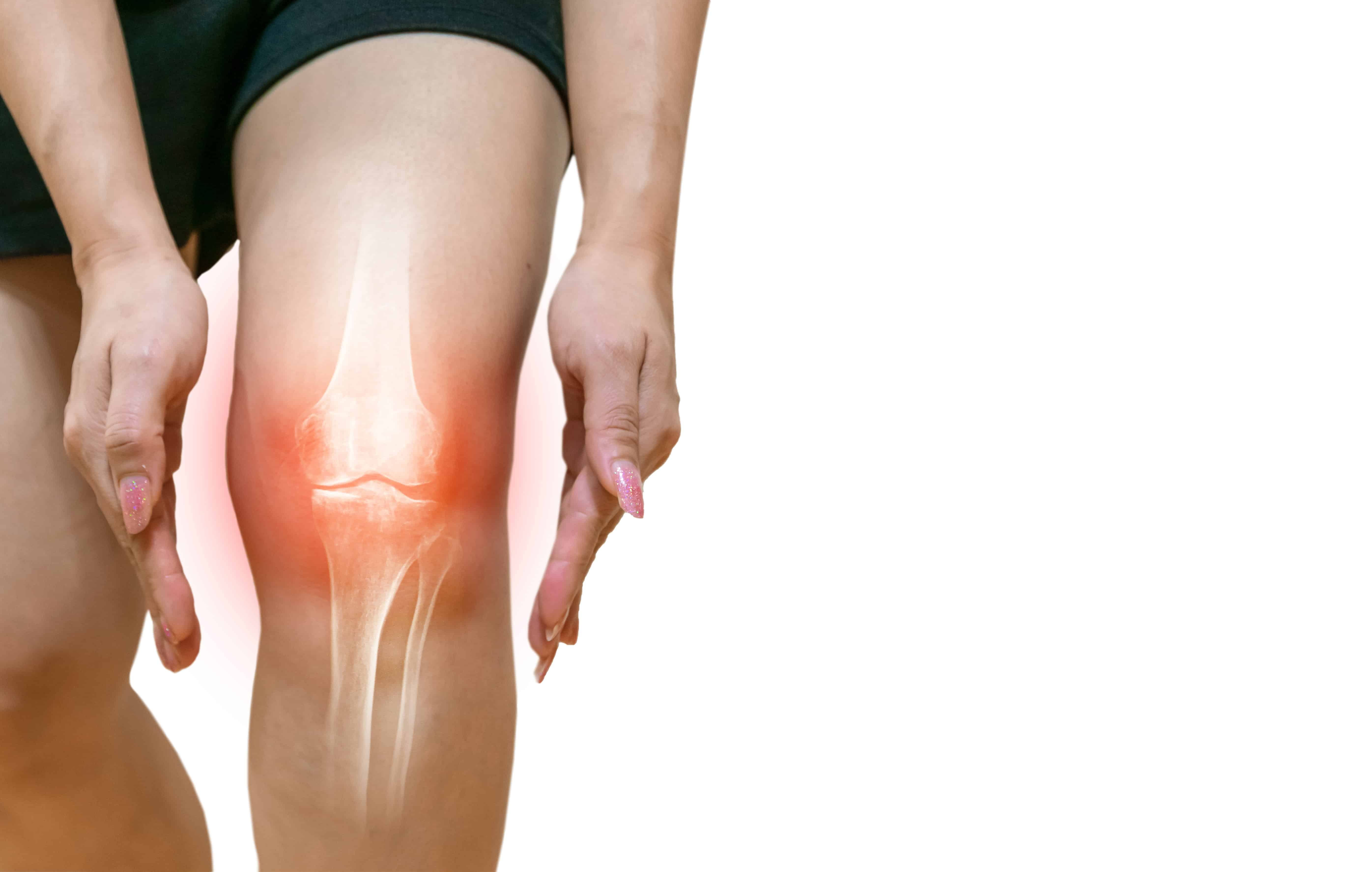 Knee-Ligament-Injury image